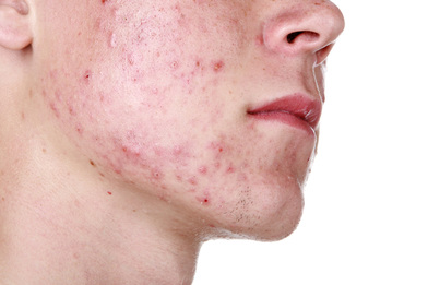 Acne on the face